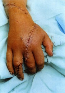 Hand reattached
